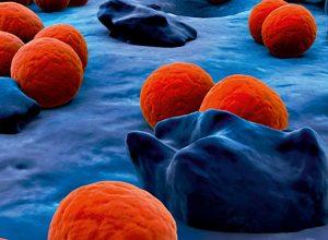 Photo of علاج مرض السيلان