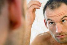 Photo of عصير البصل والعسل لعلاج تساقط الشعر عند الرجال