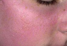 Photo of 12 وصفة طبيعيه لعلاج حساسية الوجه