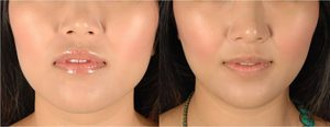 كيفية تخسيس الوجه للنساء