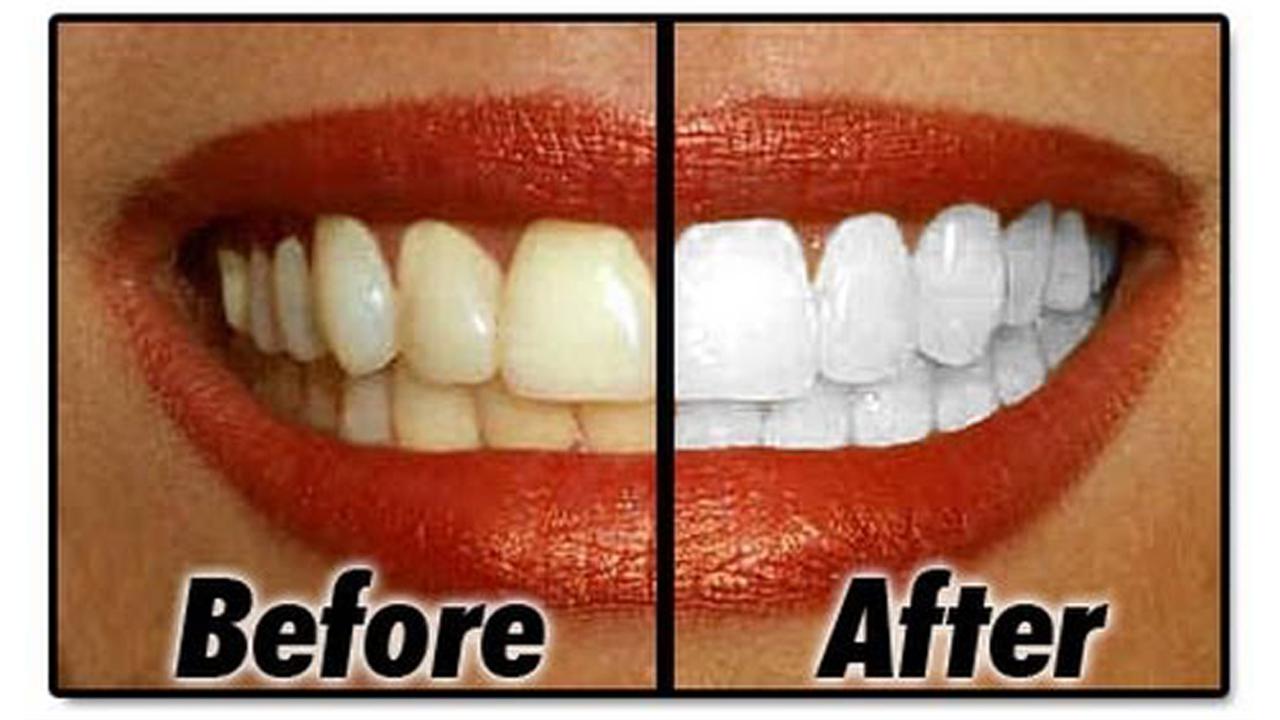 14 طريقة لتنظيف الأسنان في المنزل