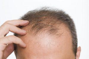 سقوط الشعر