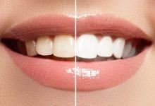Photo of أفضل وأسرع طريقة لتبييض الأسنان