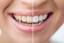 Photo of 15 وصفة لتبيض الاسنان في المنزل