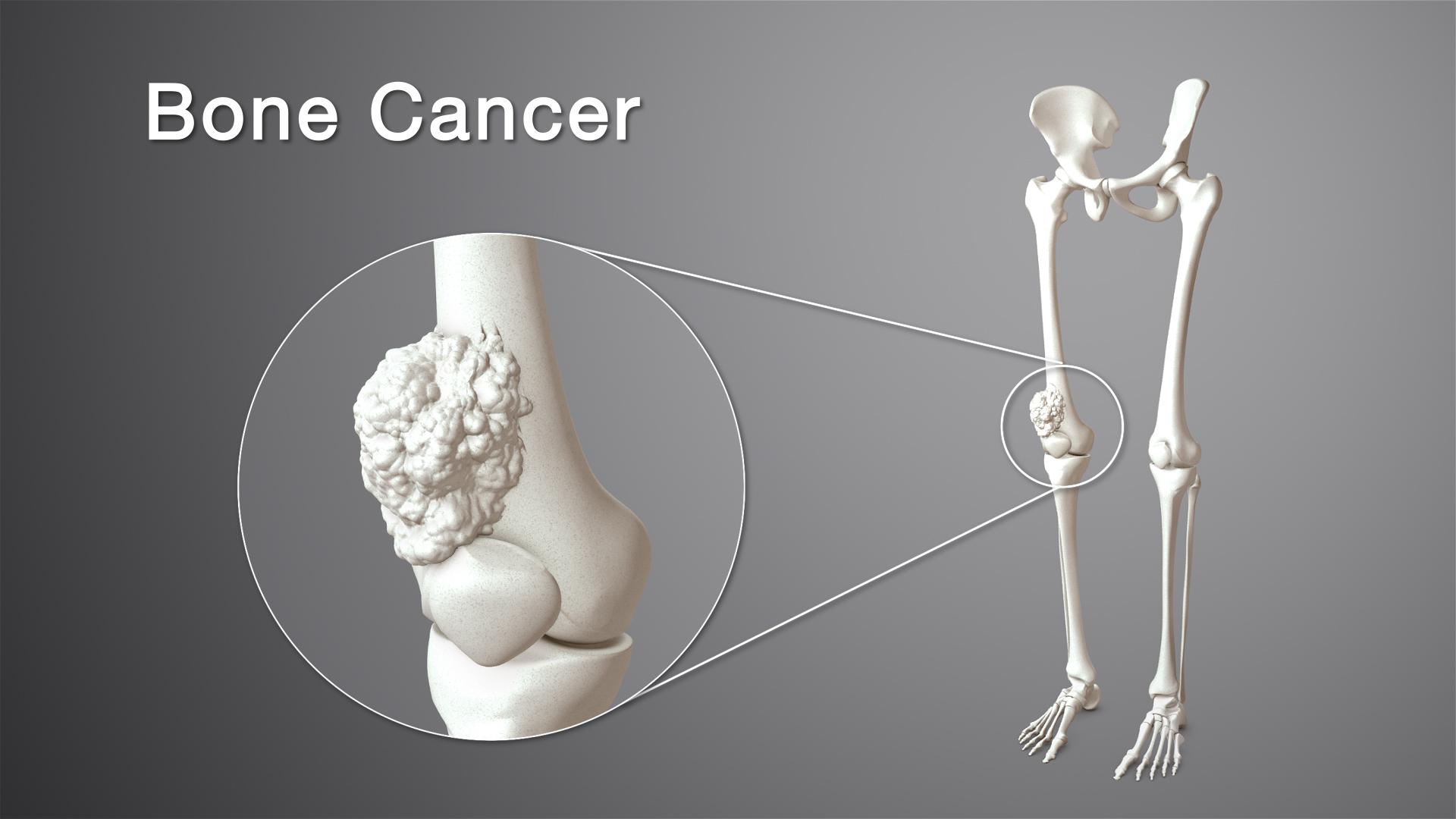 اعراض سرطان العظام