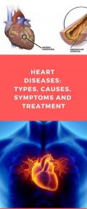 ما هي أعراض القلب الأولى ؟
