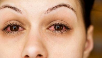 Photo of علاج التهاب العين