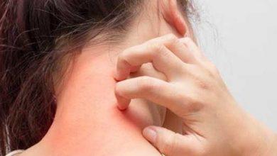 Photo of اسباب حساسية الجلد المفاجئة