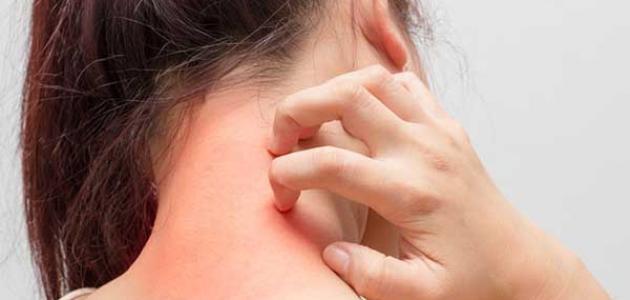 اسباب حساسية الجلد المفاجئة