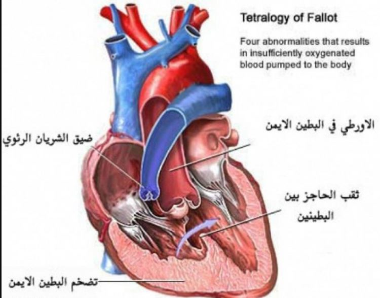 ثقب القلب