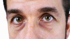 ماء الورد لعلاج الهالات السوداء تحت العين