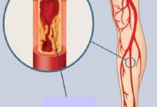 Photo of علاقة قياس ضغط الدم بأمراض الشرايين الطرفية