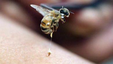 Photo of أضرار لسعة النحل