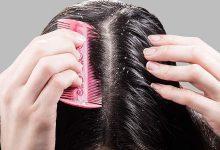 Photo of 8 أسرع وصفات لعلاج قشرة الشعر