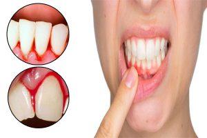 أسباب خروج الدم من الفم