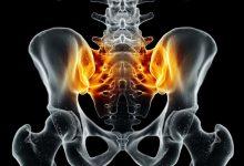 Photo of أعراض التهاب العمود الفقري
