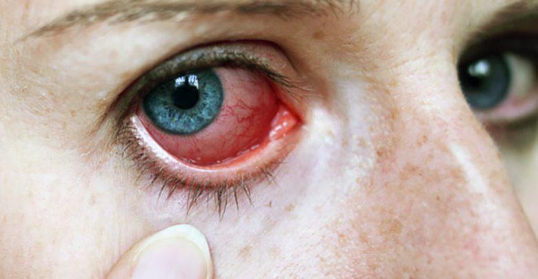 علاج التهاب العين واحمرارها