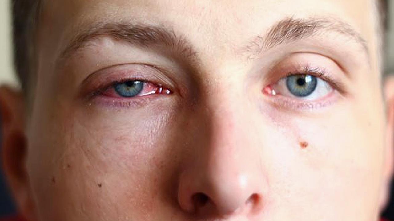 علاج التهاب العين واحمرارها مجلة رجيم