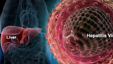 Photo of التهاب الكبد الفيروسي b
