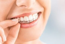 Photo of تقويم الأسنان الشفاف