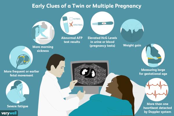 اختبار حمل