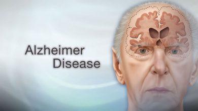 Photo of مرض الزهايمر