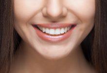 Photo of العناية بنظافة الأسنان