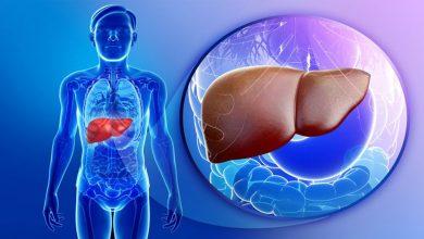 Photo of التهاب الكبد الحاد