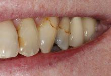 Photo of تخلص من البقع البنية على الأسنان