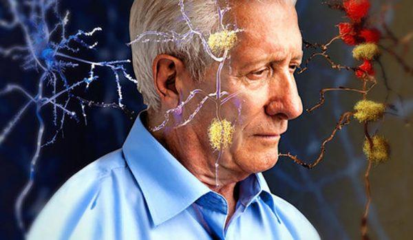 أعراض الزهايمر alzheimer