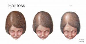اسباب تساقط الشعر .