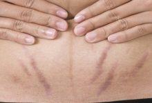 Photo of أفضل نصيحة للحفاظ على بطن خالي من التشققات بعد الولادة
