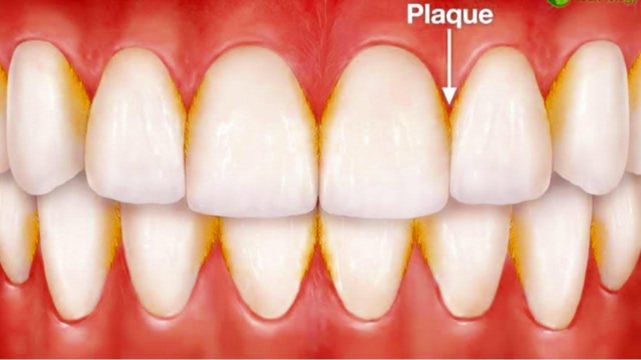 جير الاسنان اسبابه و طرق علاجه .