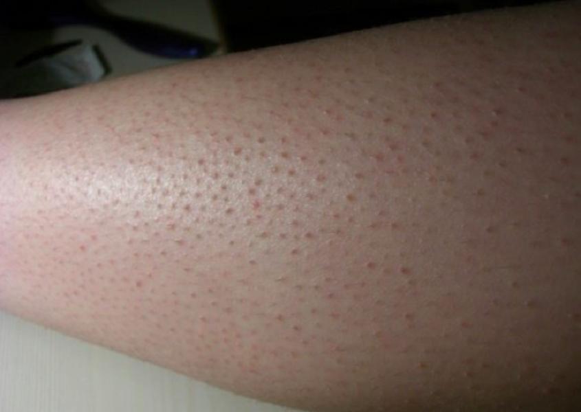 نصائح لتجنب جلد الوزة