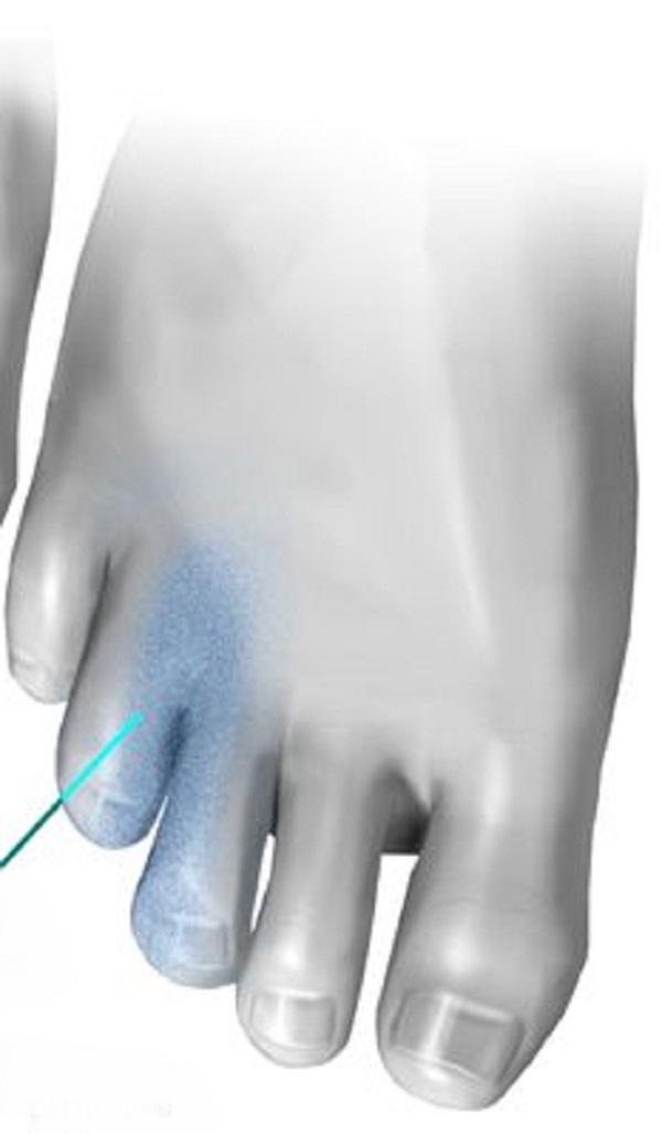 اسباب التهاب بين الاصابع