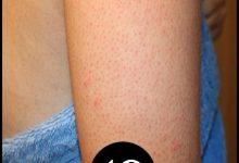 Photo of 10 طرق للتخلص من جلد الوزة سهلة وسريعة