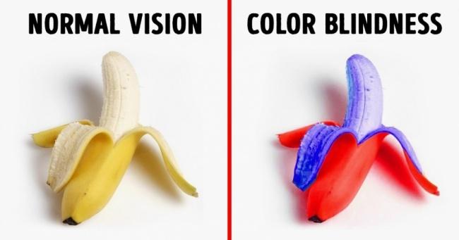 أعراض عمى الألوان وعلاجه