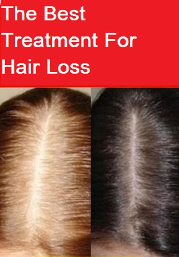 علاج تساقط الشعر الحديث