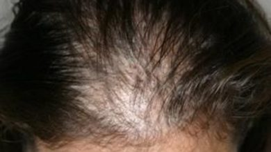 Photo of افضل علاج لتساقط الشعر