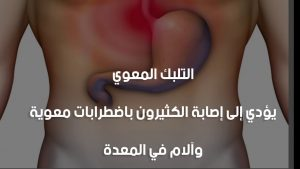 علاج التلبك المعوي .