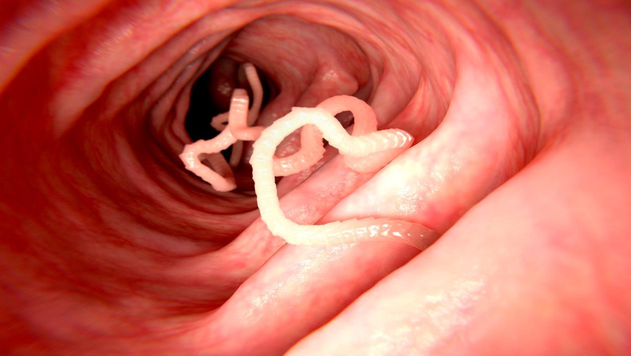 علاج دودة الاسكارس بالثوم .