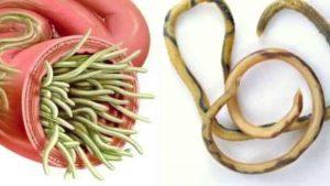 علاج دودة الاسكارس بالثوم