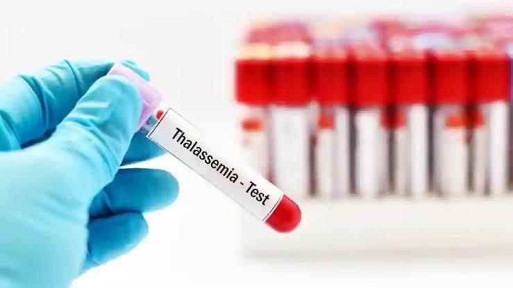 امراض الدم الوراثية