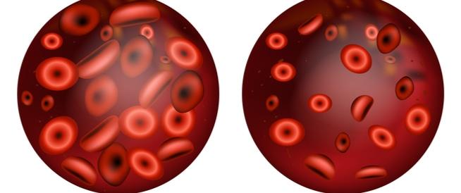 فوائد البنجر في علاج الأنيميا